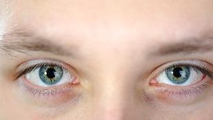 Closeup of eyes